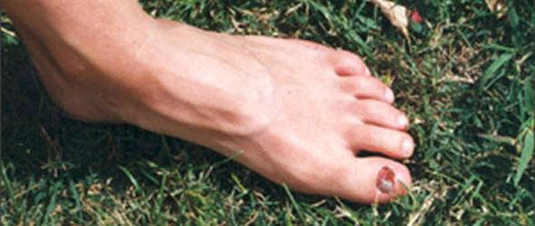 Footcare - Summer toe